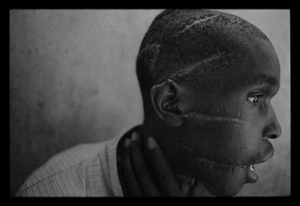 Scarred man, after the Rwandan genocide. Photo: James Nachtwey