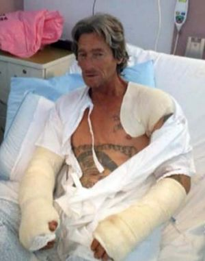 Recovering: The victim, identified by Channel Nine as Robbie Nelson, had a gaping wound under his arm.