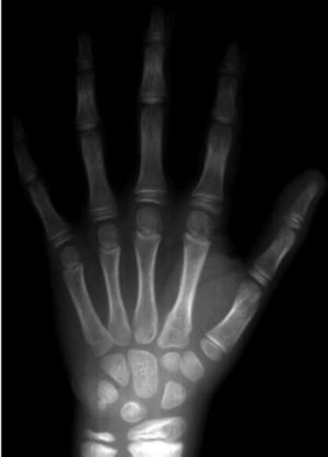 On hand: X-rays will soon be part of online records.