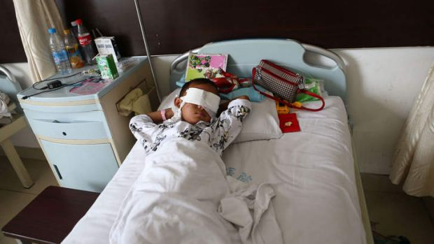A boy lies on his hospital bed with his eyes covered with bandages in Taiyuan in north China's Shanxi province.