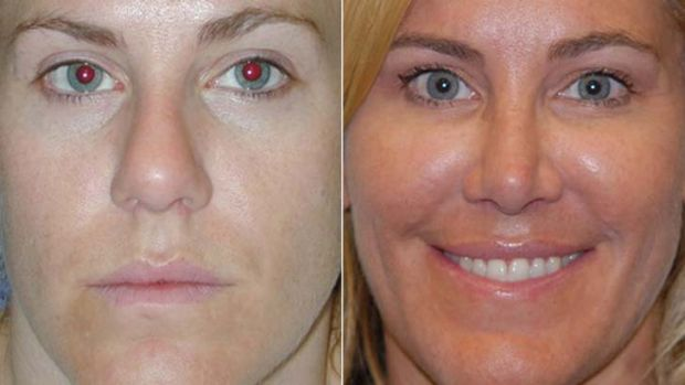 Rhinoplasty: before and after.