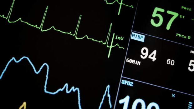 """""""If you have a cardiac arrest, you're more likely to die than you were in 2005."""""""