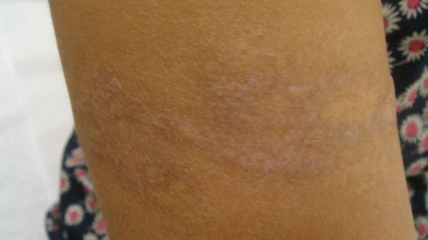 Tattoo removal - after shot