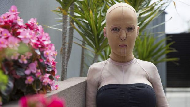 Plight: Perth's Dana Vulin had third degree burns to 64 per cent of her body. She told her story on <i>Sunday Night</i>.