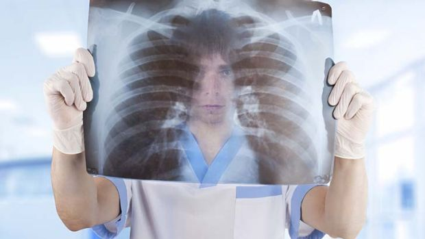 Lung cancer: Early detection could save 1500 lives a year in Australia.