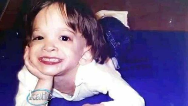 Forever a toddler: Brooke Greenberg was 20 when she died.