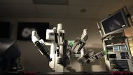 Will robotic surgery be the way of the future? (Video Thumbnail)