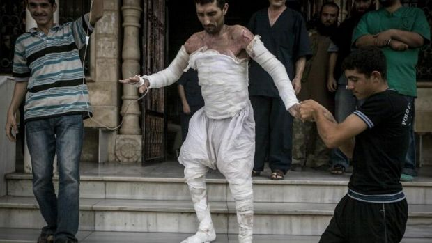 A Syrian burnt in an air strike in northern Idlib province leaves hospital.
