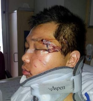 Victim: Minh Duong in hospital after being attacked by neo-Nazis.
