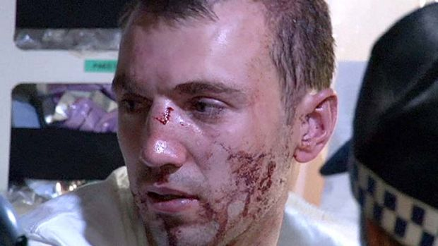 Face of violence: a man bears the scars of an assault at Haymarket on Friday night.