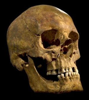 The skull of King Richard III found at the Grey Friars Church excavation site in Leicester.