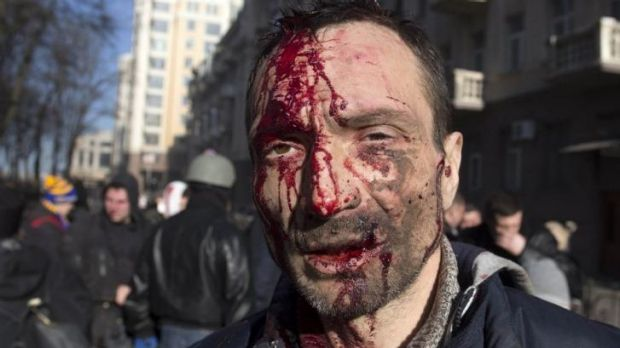 Bloody street riot ... A man looks on after being injured in clashes between anti-government protesters and Ukrainian ...