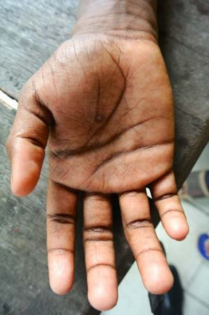 Demianus Gobay says his hand was burnt with a cigarette as a punishment for breaking rules.