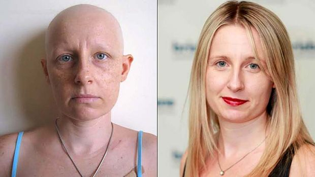 Brisbane Times reporter Kim Stephens (right) and during chemotherapy (left).