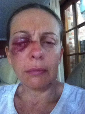 """I had to sit down, trying not to faint."": Sydney woman Angela suffered a serious eye injury after being attacked by two ..."