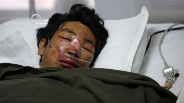 Survivor: Nepalese mountaineer Dawa Tashi Sherpa lies in the Intensive Care Unit at Grande International Hospital in ...
