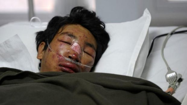 Dawa Tashi Sherpa survived the avalanche but remains in hospital.