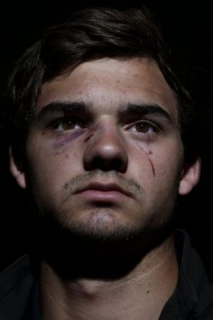 No comment: Queanbeyan Whites fourth grade player Adam Res; nose was broken when he was king hit during a rugby game on ...