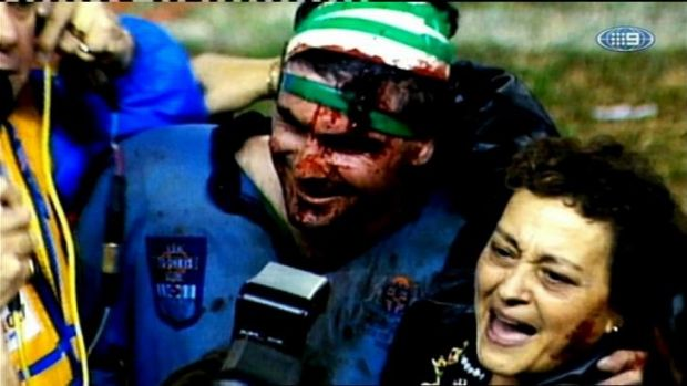 Blood, sweat and tears: A bloodied Benny Elias with mum Barbara after the epic win in 1992.