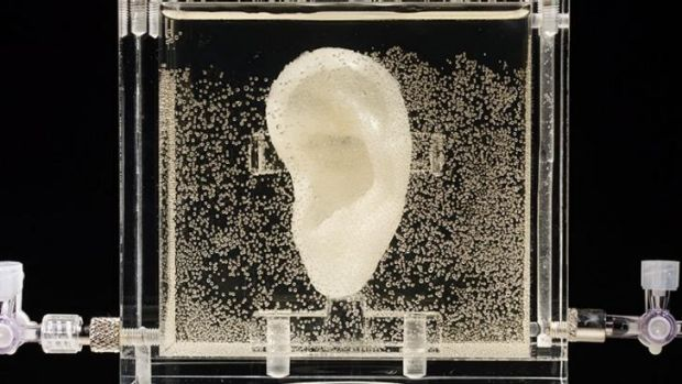 The ear made of human cells grown from samples provided from a relative from Dutch artist Vincent van Gogh.
