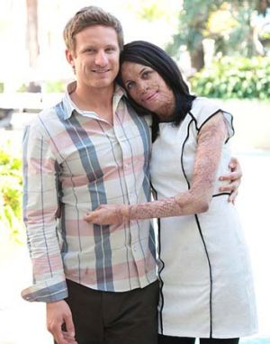 Turia, with partner, Michael Hoskin. Photo: Turia Pitt Facebook