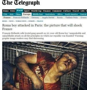The UK Telegraph's photo of the brutally beaten Roma teen.