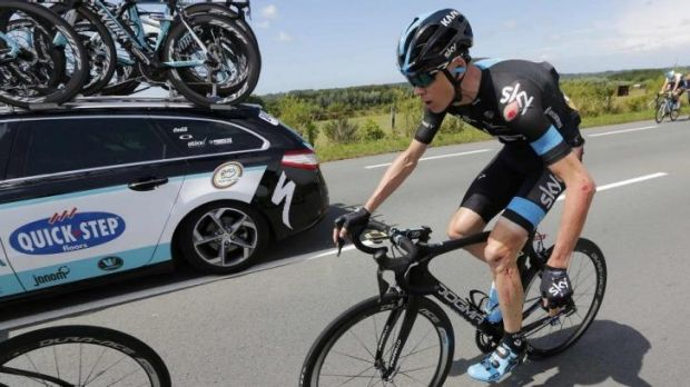 Froome dangles his injured left wrist as the cuts and grazes cover the left-side of his body.