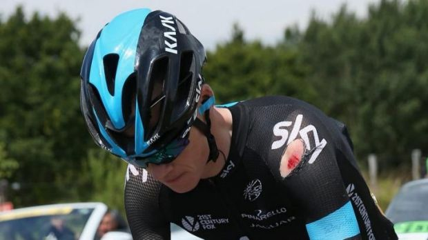 Sky is falling: Chris Froome bears the scars.