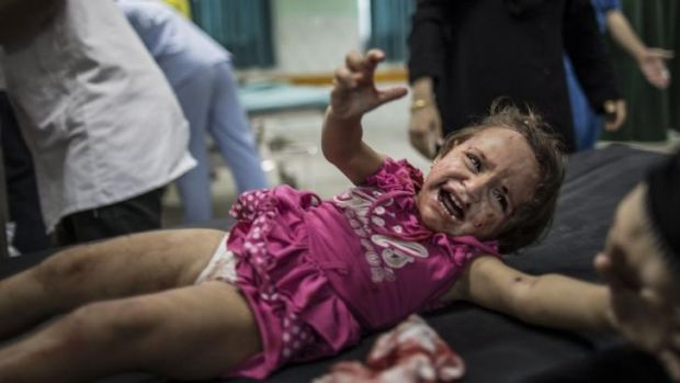 An injured Palestinian at a hospital in Beit Lahia in northern Gaza.