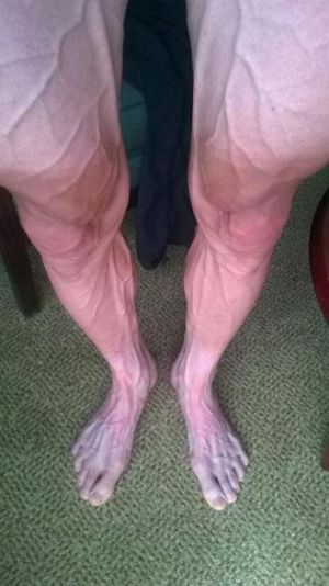 The striking image of Polish cyclist Bartosz Huzarski's legs.