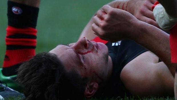 Mark Baguley of the Bombers lies on the ground after taking a knock to the head during the match against Carlton.