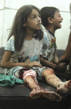 Children injured in a bombardment by Syrian government forces at a field hospital in Douma, near the Syrian capital ...