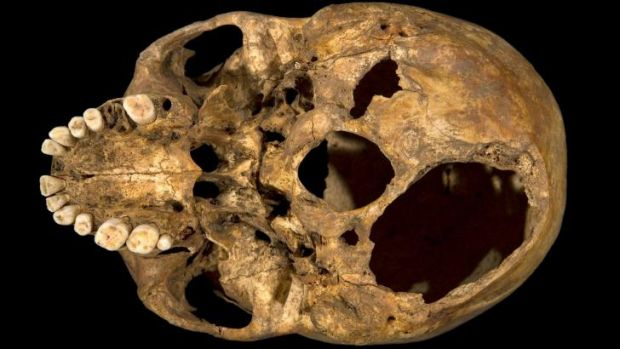 The base of the skull of Richard III showing two potentially fatal injuries.
