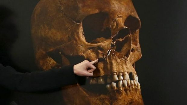 Damage to a skull, believed to be that of Richard III.