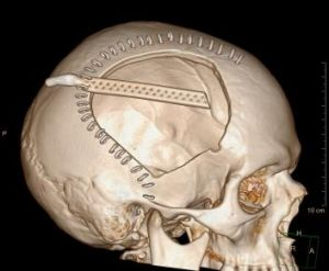 A CAT scan of Michael McEwan's skull taken at St Vincent's Hospital shows a section of skull removed from the right side ...