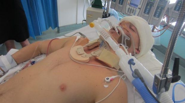 Michael McEwan in hospital after the attack.