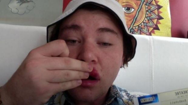 NOFX fan 'Alex' shows off his swollen lip on Twitter after allegedly being hit by NOFX lead singer 'Fat Mike' Burkett ...