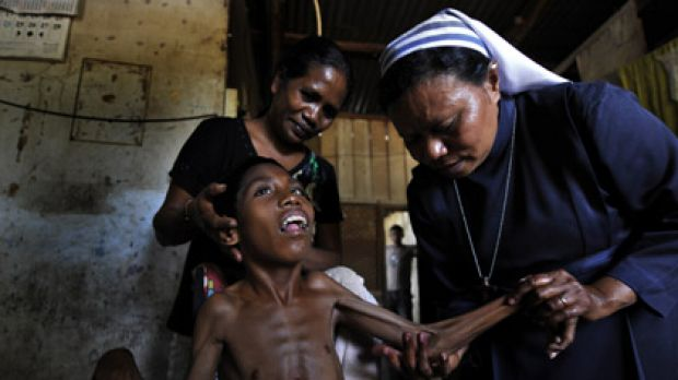 Compassion... Sister Florencia, a member of the ALMA order in East Timor, gives physiotherapy to Madalena Faria with the ...