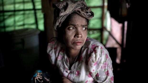 A woman suffering from hunger in a camp in Myanmar.