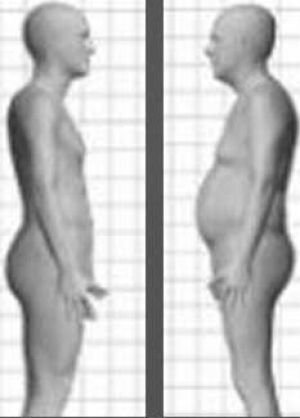 Body mass index, or BMI, is not a good measure of individual health, some scientists say.