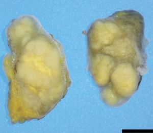 A biopsy specimen from a cervical lymph node containing firm, solid masses.