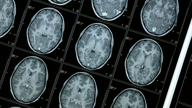Could routine intubation improve the recovery rates in brain trauma cases?
