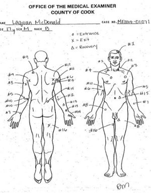 An autopsy diagram shows where Laquan McDonald was shot.