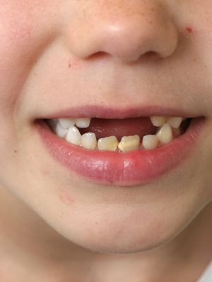 The review said it was pleased with the dental scheme for children.