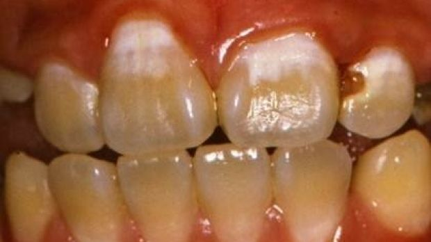 The white patches, such as those on the two front teeth, indicate decay that can be stopped.