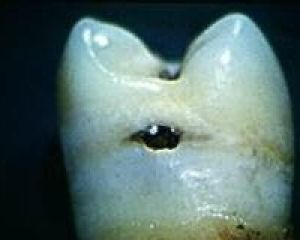 A cavity in a tooth.