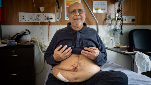 John Hatty had a liver transplant after suffering severe damage from fatty liver disease.