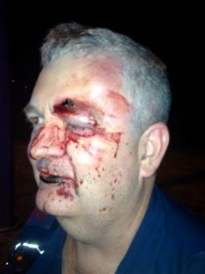 Mr Johnson suffered cuts, bruises and a black eye during the attack.