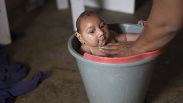 Solange Ferreira bathes her son Jose Wesley in a bucket at their house in Poco Fundo, Pernambuco, Brazil. Ferreira says ...