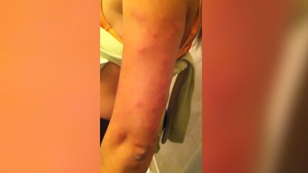 Mr Ozlen's girlfriend was covered in large red welts after sleeping on the bed.